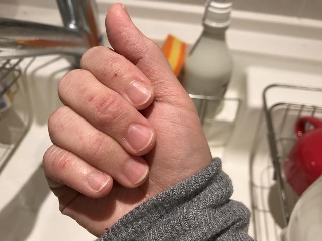 爪に筋が出来るのは病気が原因?線が黒かったら要注意!