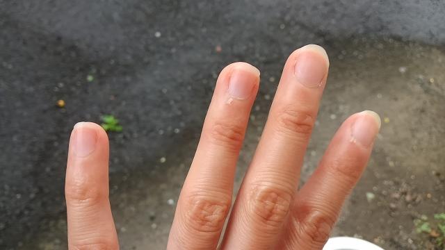 爪が薄いのって生まれつき?柔らかいフニャフニャ爪の原因と補強方法