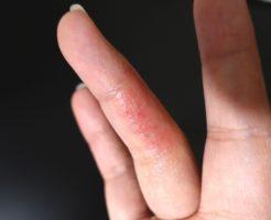 ジェルネイルアレルギーの症状・原因・対策|市販薬で完治する?