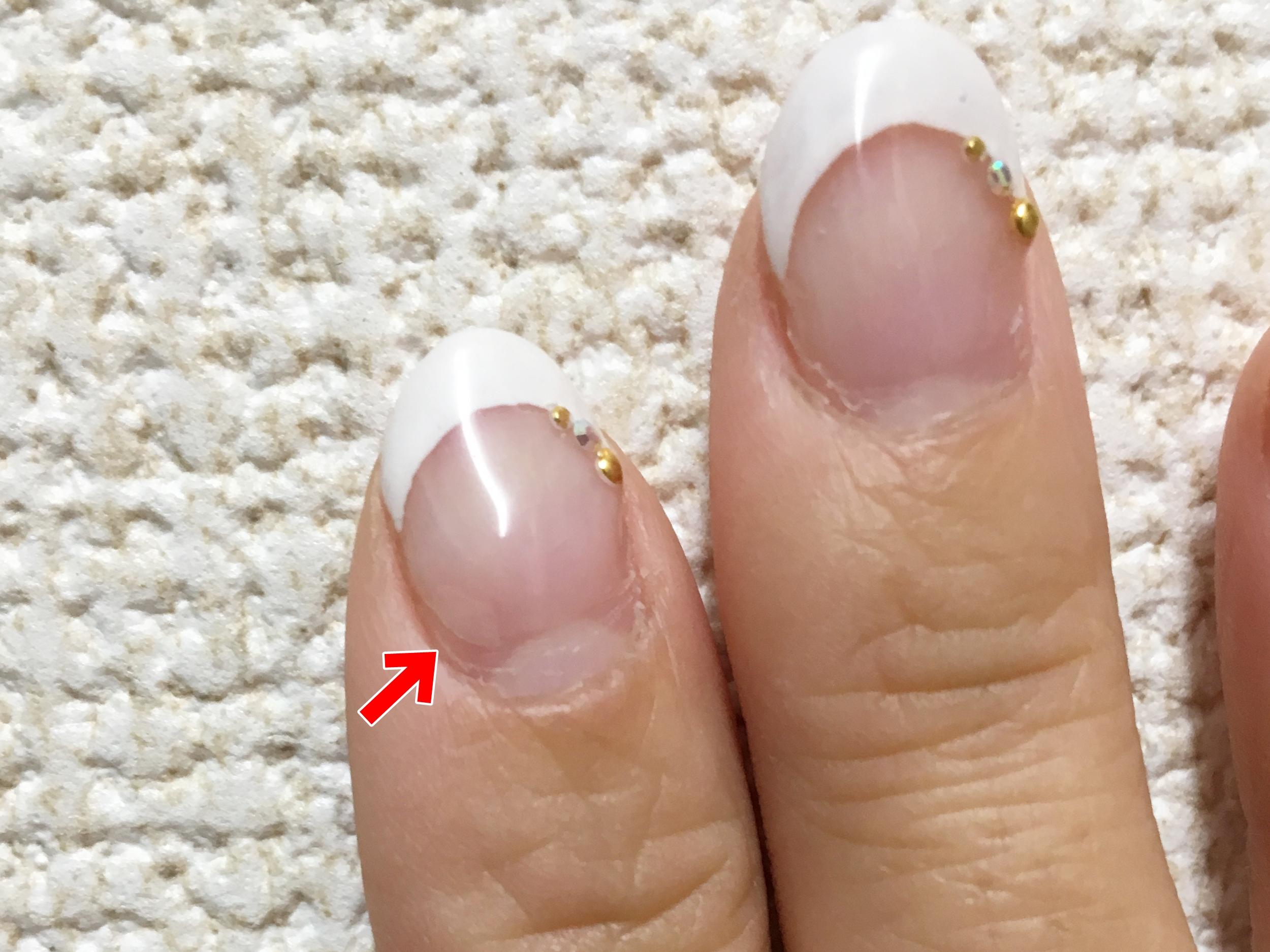 ジェルネイルで爪がボロボロになる原因と対処法
