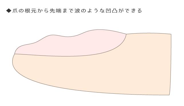 爪のへこみ|病気のサイン?親指や根元にできる凸凹の正体と対処法