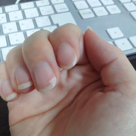爪が割れるのは病気?縦割れ・横割れ・二枚爪の原因と対処法7選