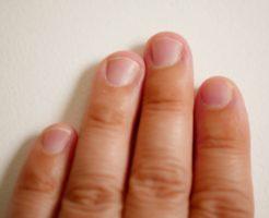 噛み爪をジェルネイルで美しく!爪を噛む癖を治す方法はある?