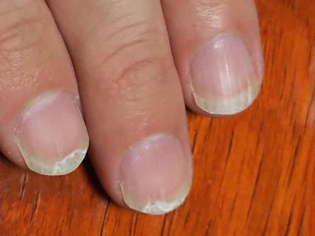 ジェルネイルの自爪が折れた・割れた・ボロボロになったときの対処法