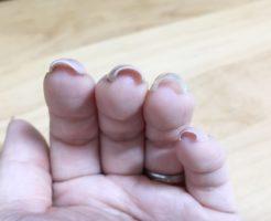 セルフジェルネイルで巻き爪になる原因と対策・治し方