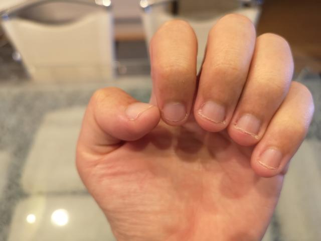 爪の噛み癖がある子供にジェルネイルをしてもいい?やめさせる方法は